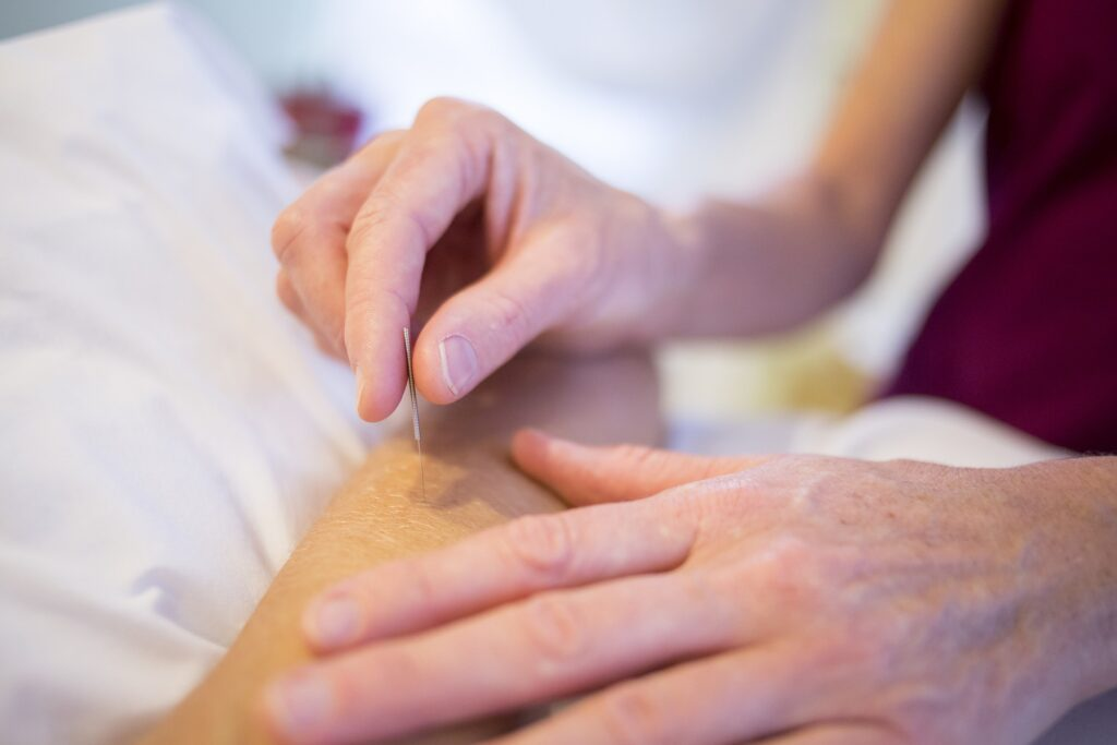 acupuncture and pain