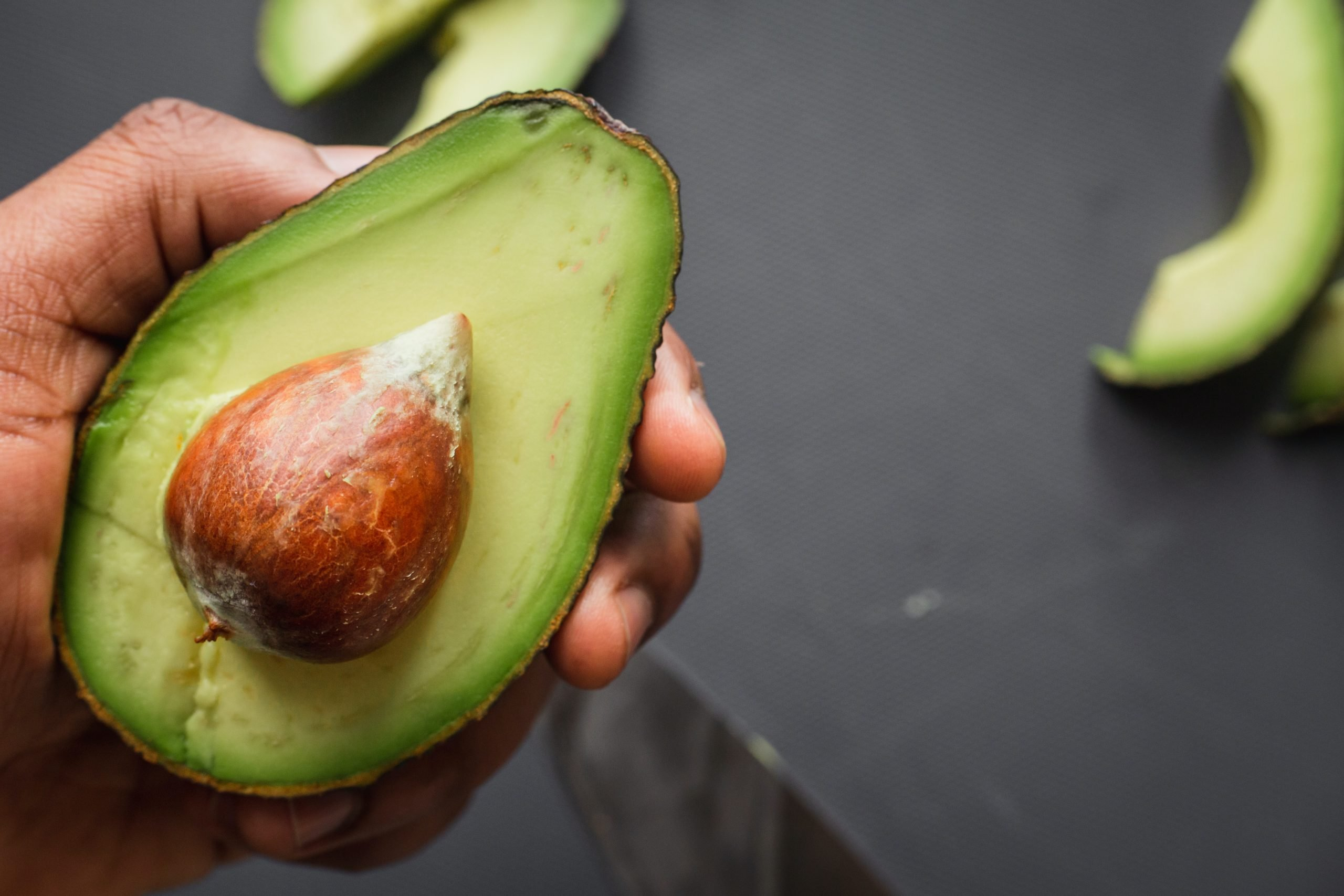 5 Important Things to Know about Avocado for Dogs