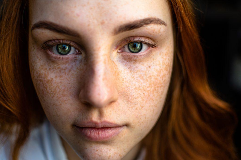 Skin Purging vs Breakout